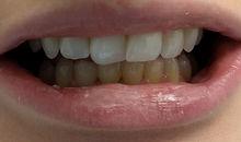 Dentist in Cedarhurst, NY ; Cosmetic Dentist in Cedarhurst, NY