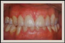 Cedarhurst dentist, Five towns dentist, cedarhurst cosmetic dentist, five towns cosmetic dentist