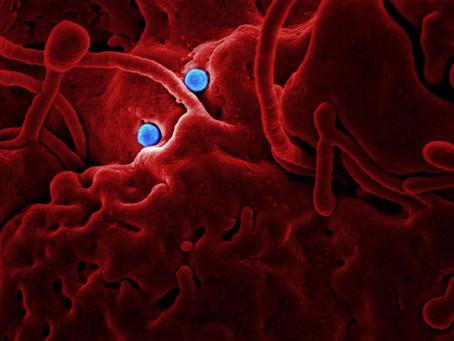 Pierwsza osoba zarażona koronawirusem w Polsce - jak się chronić?