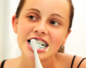 Flossing, Brushing and Beyond: How to Care for Teeth with Braces