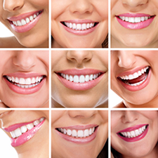 Tooth Reshaping: The Easy, Inexpensive Way to Lift Your Smile