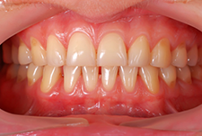 How to Recognize and Prevent Gum Disease