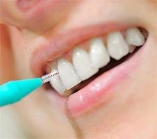 Not a Fan of Flossing? Try These Alternatives.