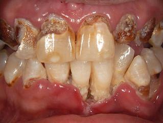 Meth Mouth: How Methamphetamine Use Affects Dental Health