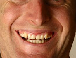 Bye-Bye, Buck Teeth! How to Overcome an Overbite