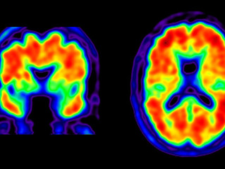 Neuropsychologická rehabilitace - Neurodegenerativní poruchy