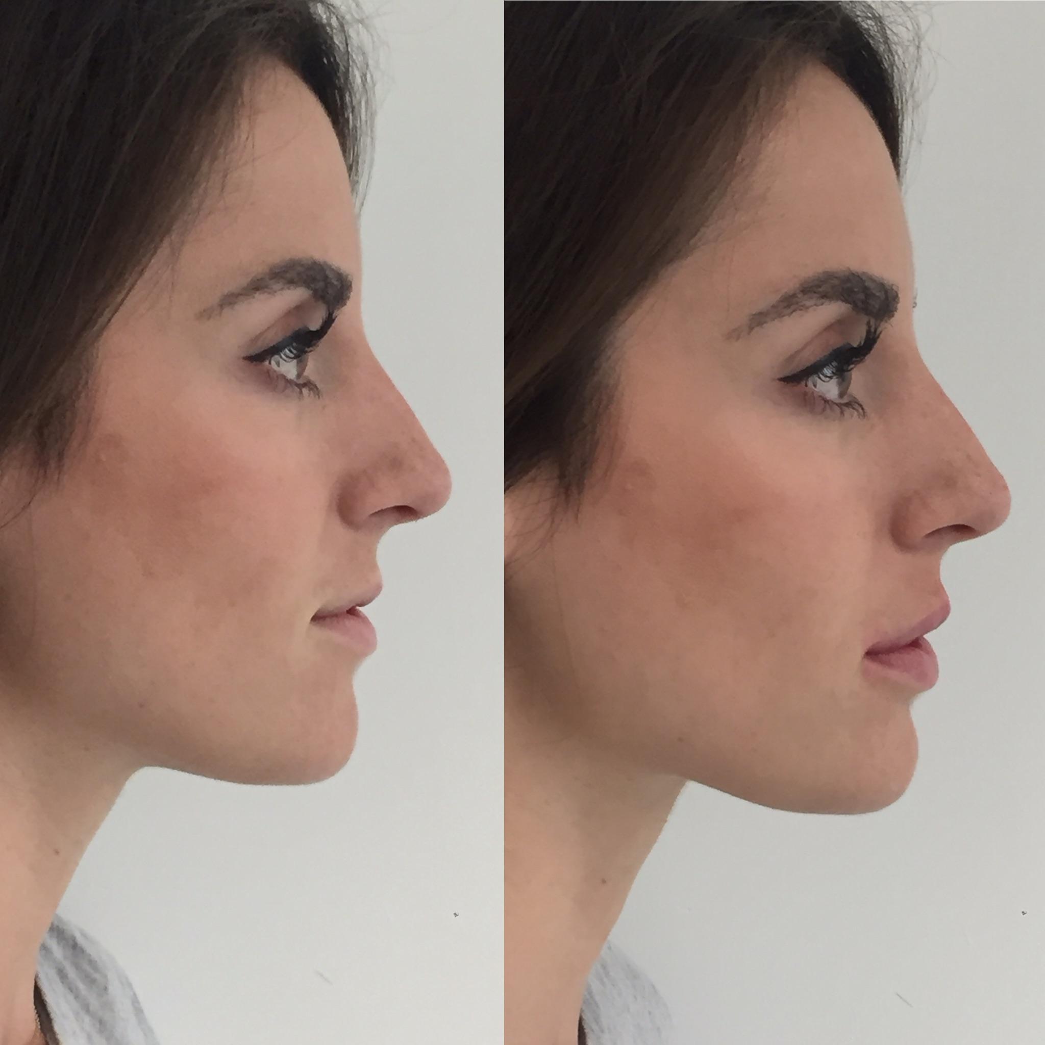 Lip enhancement 1ml