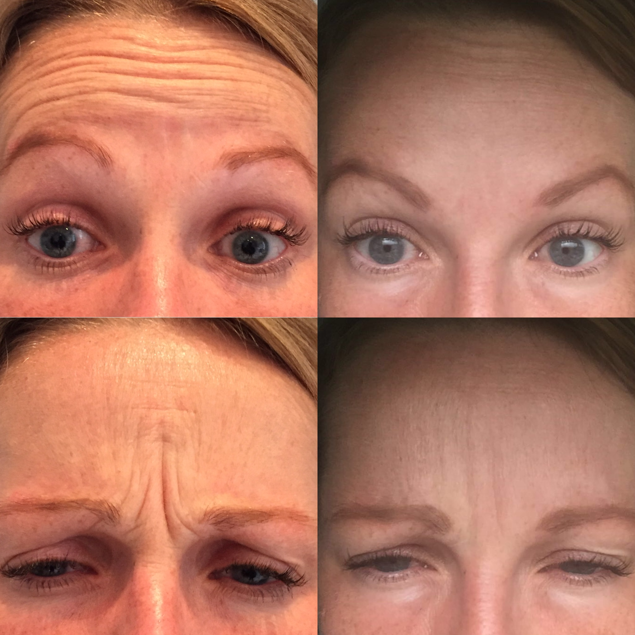 Forehead and Frown lines