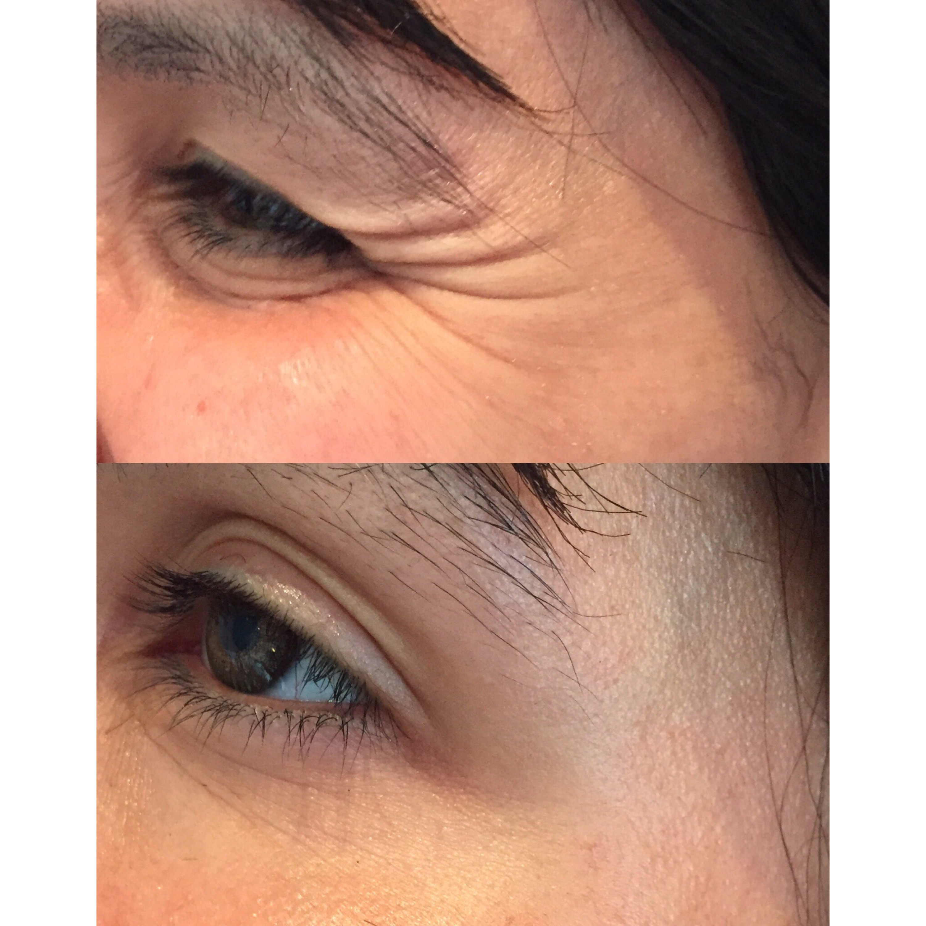 Crow's feet treatment with toxin