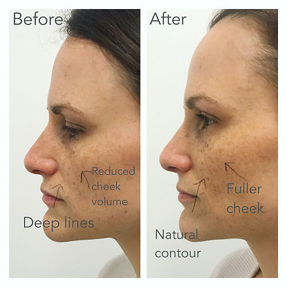 cheek filler