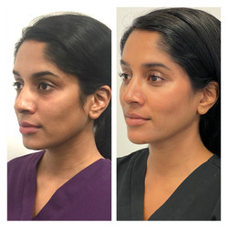 Dr Uma's Before and After