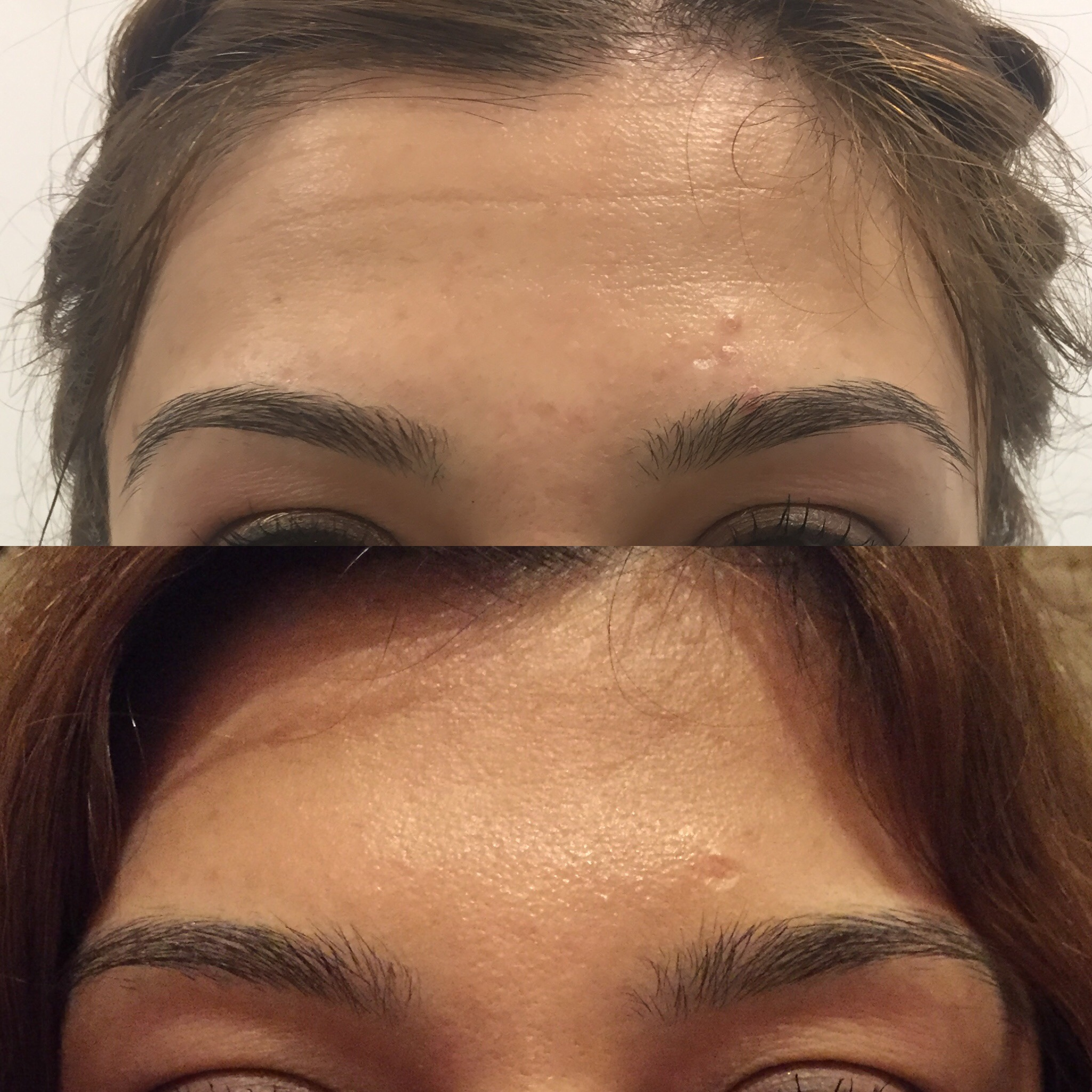 Preventative anti-wrinkle injections