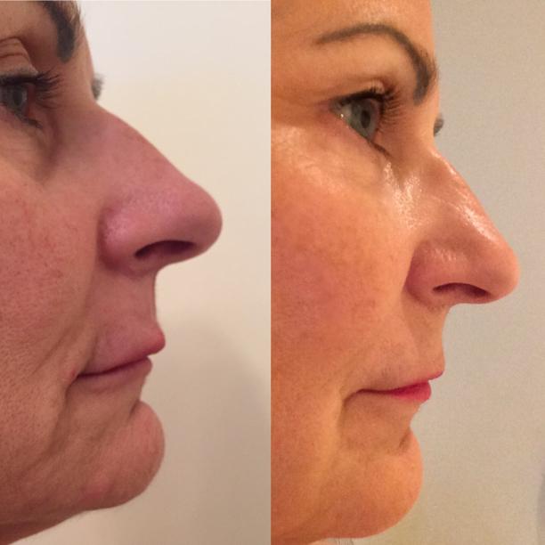 Improved Facial Profile