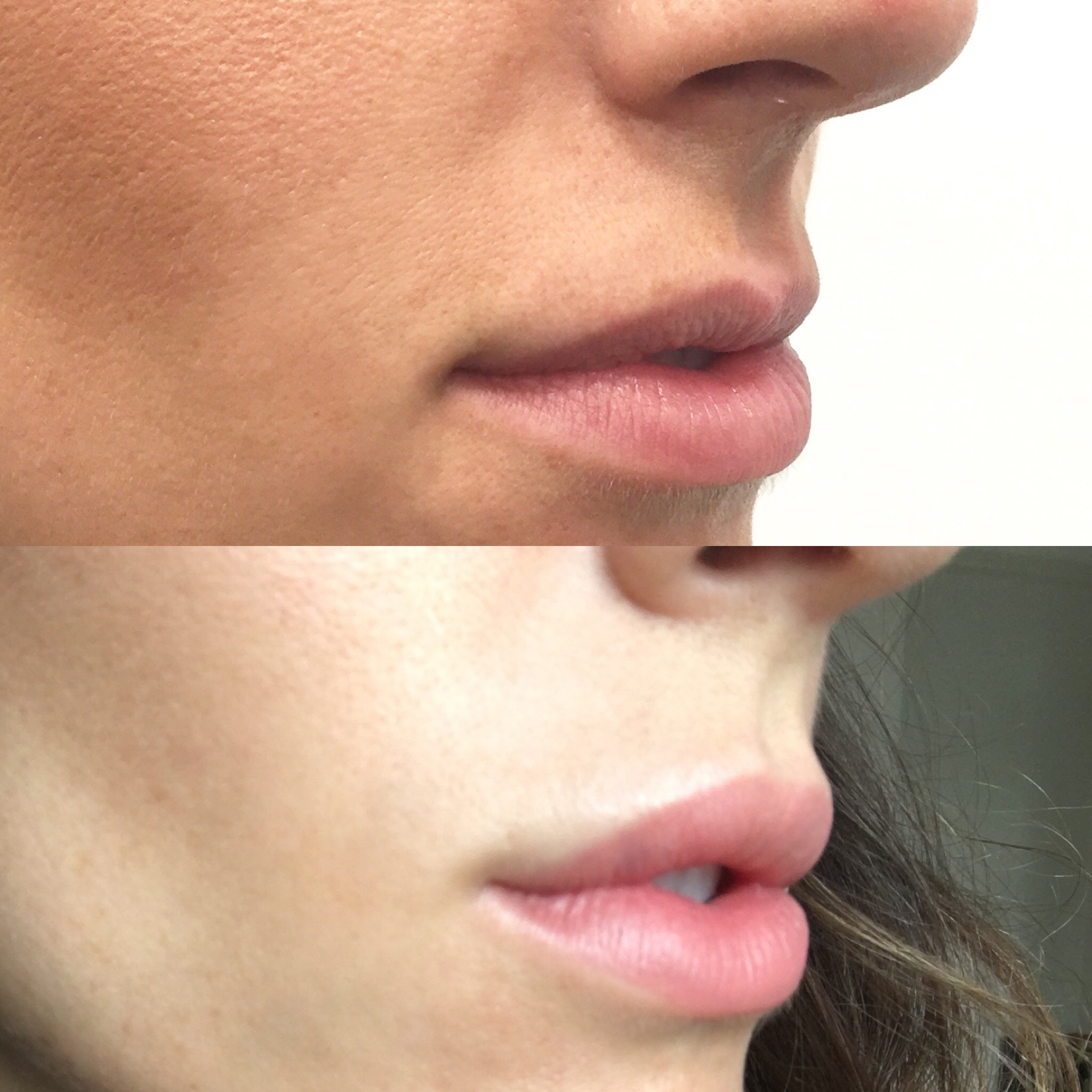Before and after lip fillers.