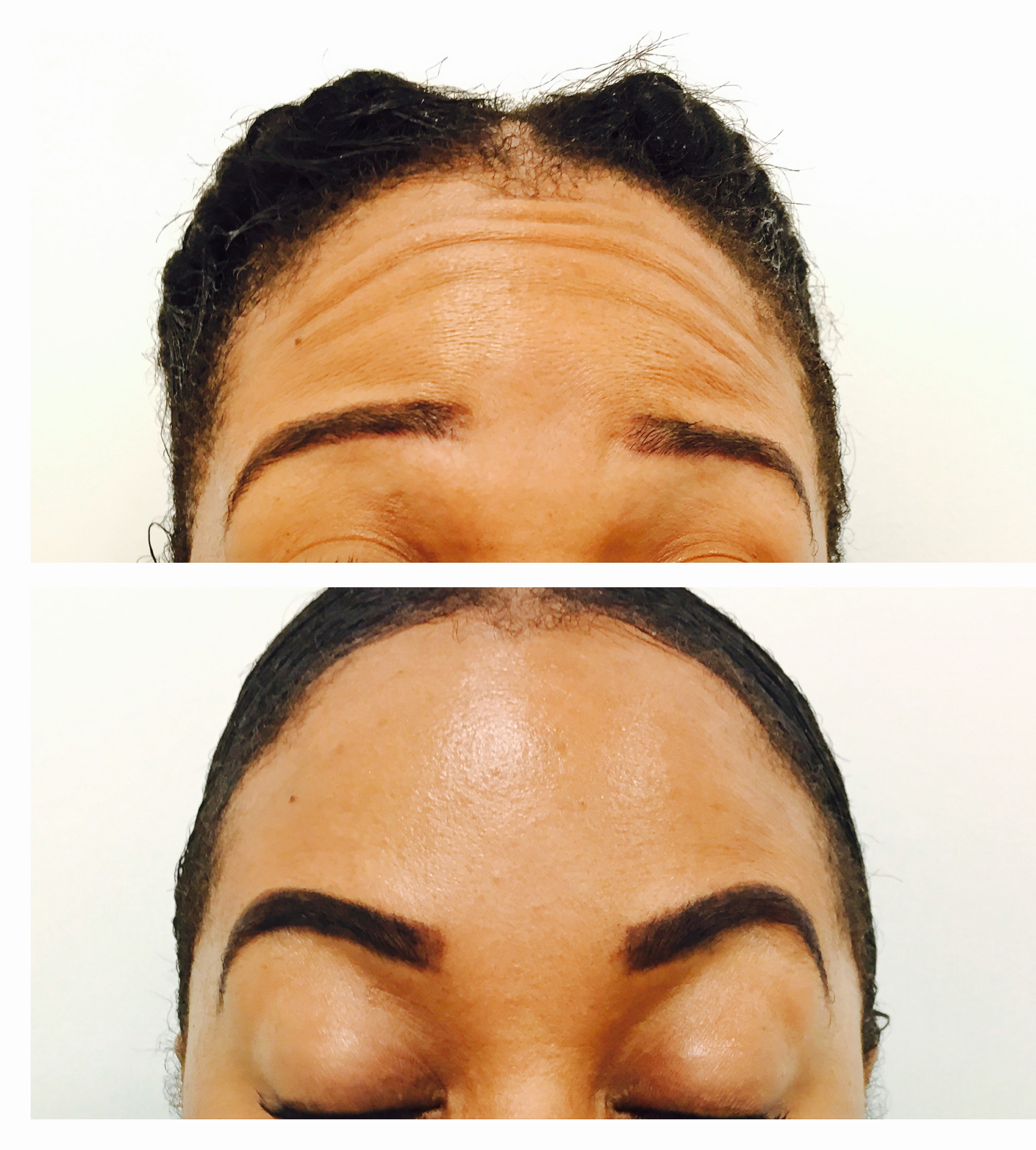 Brow lift with toxin