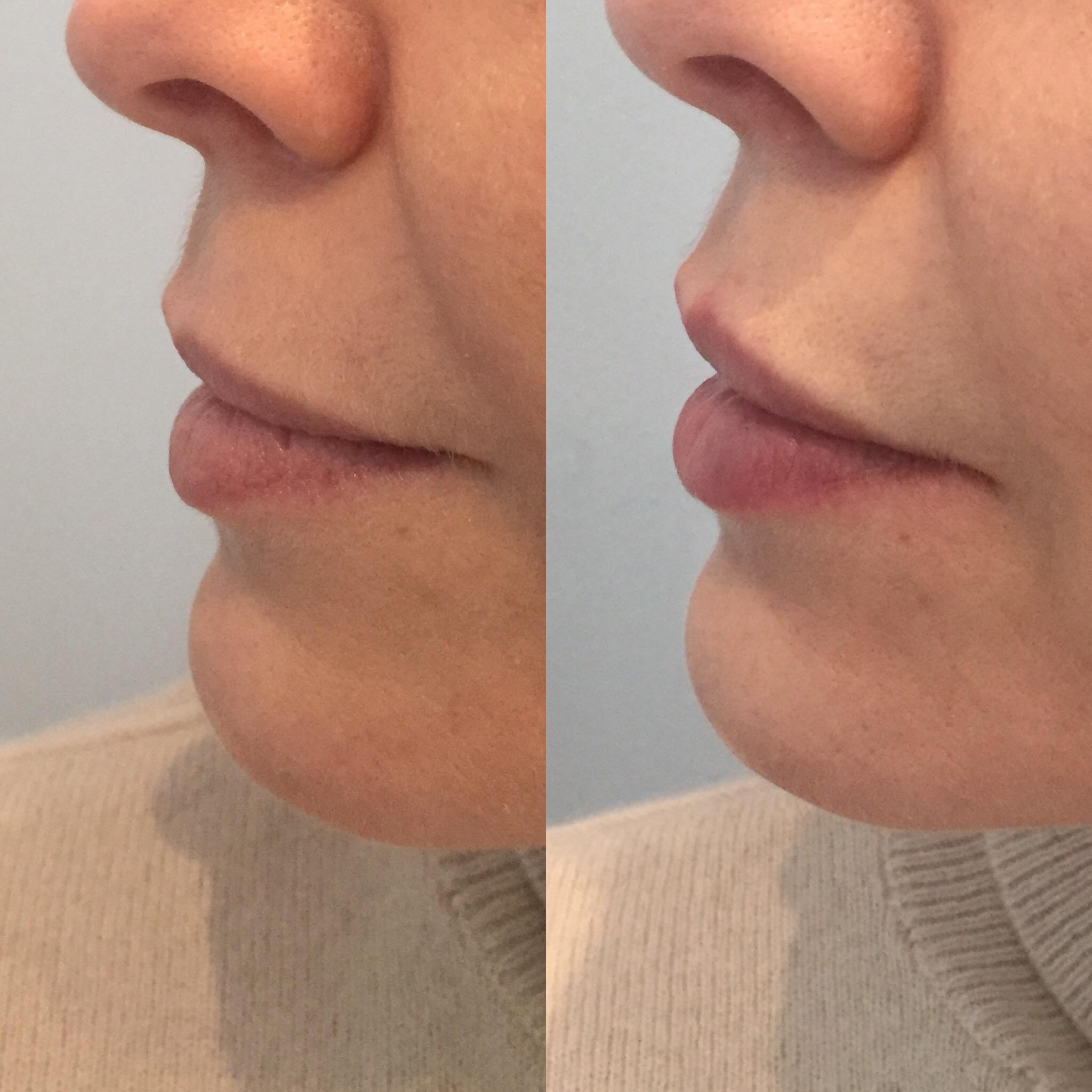 Subtle enhancement to lips