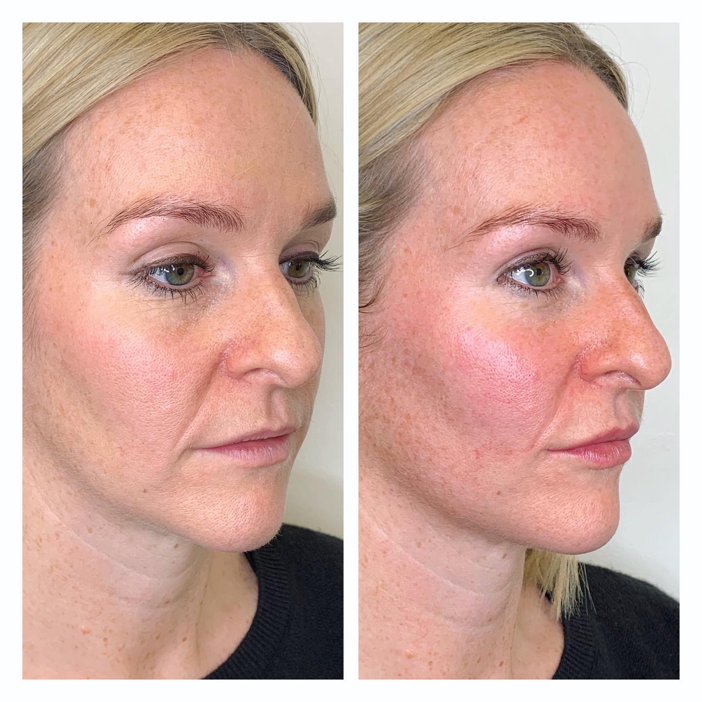 Cheek Filler and subtle lip enhancement