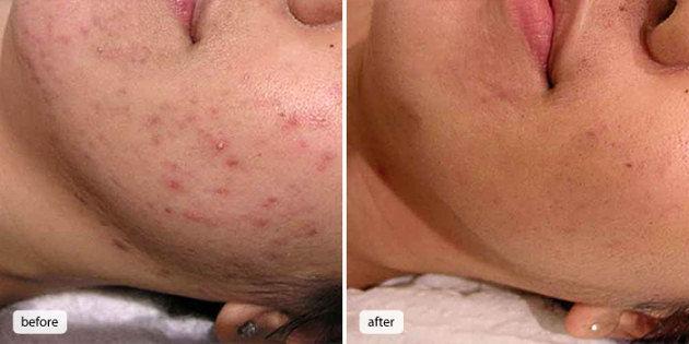 Anti-Acne Clarifying Facials
