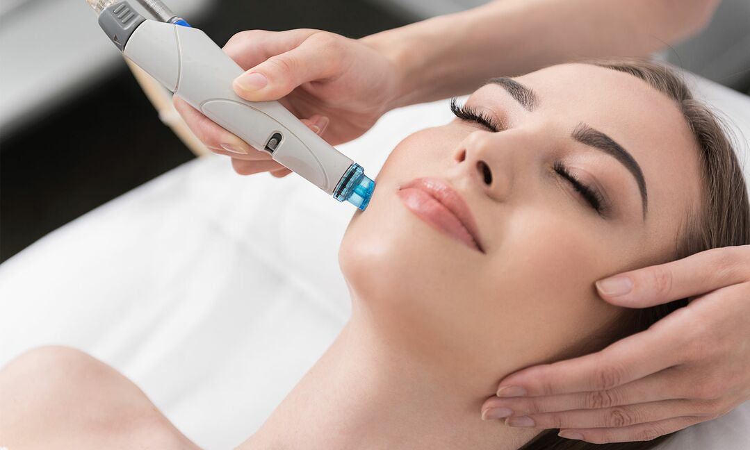 One HydraDermabrasion Treatment