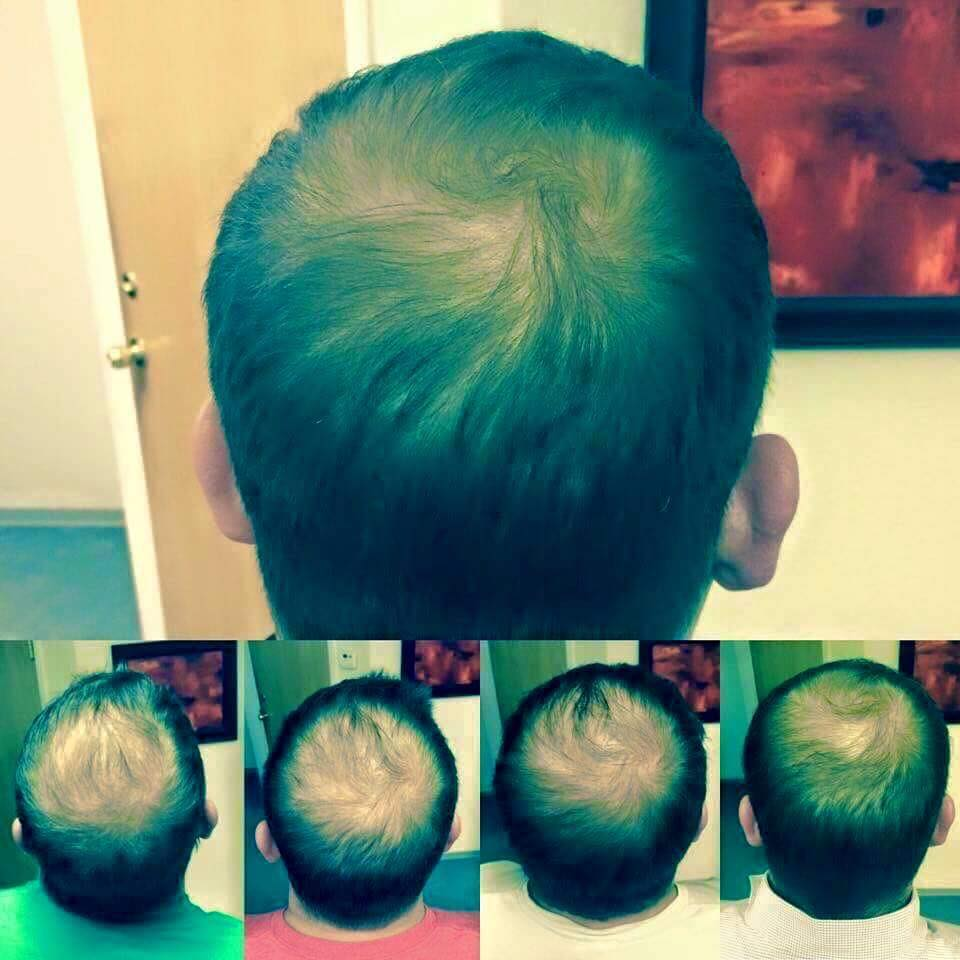 Regrow hair with Monat, men hair
