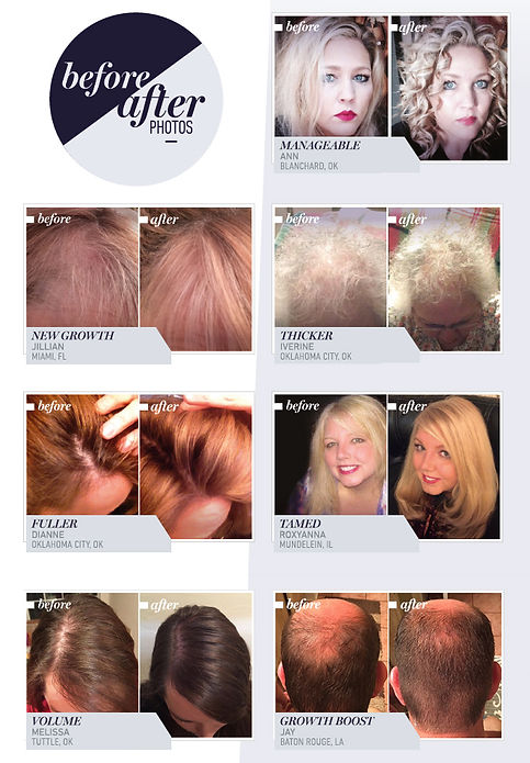Before and After using Monat Products
