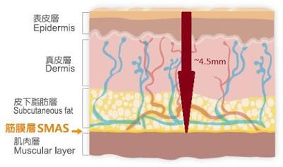 黃天厚-醫生-青春輪廓-筋腱膜