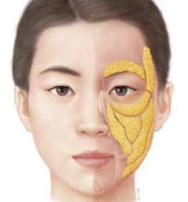 提升面部輪廓 - Part. 2
