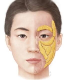 黃天厚-醫生-提升面部輪廓-面部脂肪