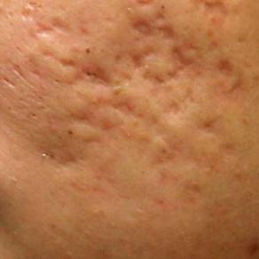 疤痕的類型和醫治方法