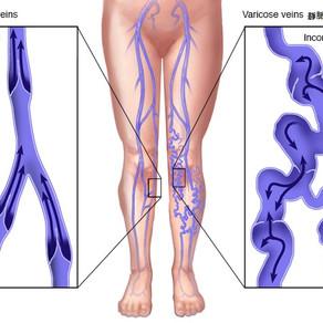 了解靜脈曲張的成因 | 如何治療靜脈曲張?