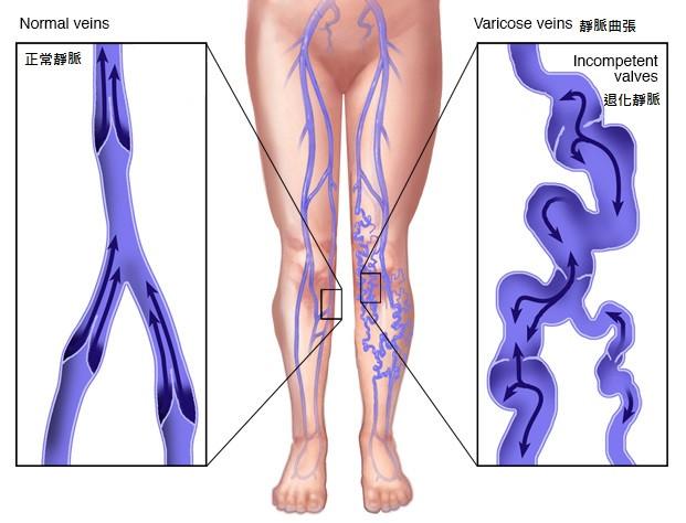 黃天厚醫生-靜脈曲張-治療方法