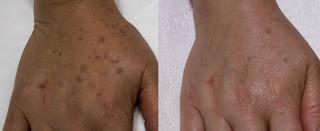 黃天厚-醫生-皮秒激光-老年斑-治療