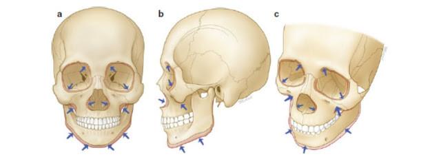黃天厚-醫生-提升面部輪廓-面部骨骼