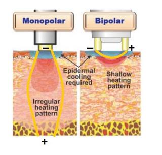 黃天厚-醫生-提升面部輪廓-單極射頻