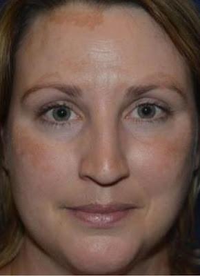 黃天厚-醫生-皮秒激光-荷爾蒙斑