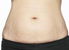 懷孕後的皮膚問題