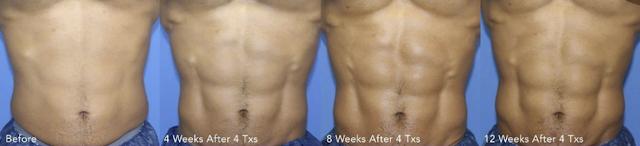 黃天厚-醫生-練肌減脂-被動性肌肉訓練