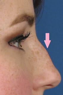 黃天厚-醫生-溝通三角區-鼻-凸