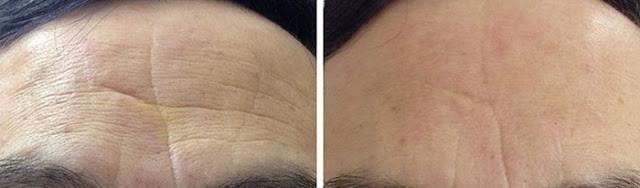 黃天厚-醫生-透明質酸-玻尿酸-前額皺紋
