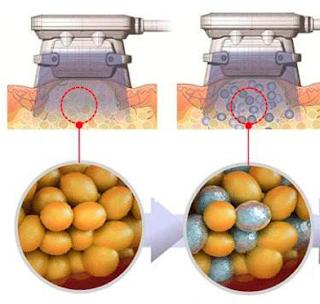 黃天厚-醫生-練肌減脂-冷凍溶脂