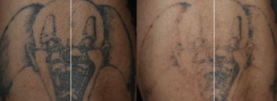 黃天厚-醫生-皮秒激光-去紋身
