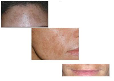 黃天厚-醫生-色斑-荷爾蒙斑