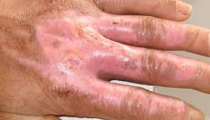 黃天厚-醫生-疤痕-燒傷