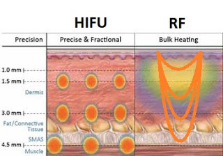 黃天厚-醫生-提升面部輪廓-HIFU