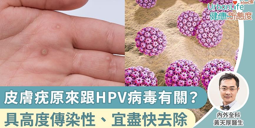 黃天厚-醫生-疣-hpv病毒.png