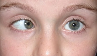 黃天厚-醫生-肉毒桿菌-botox-改善斜視