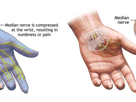 Carpal Tunnel Syndrome and How Chiropractic Can Help