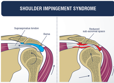 Pain in the Shoulder? It could be Impingement Syndrome