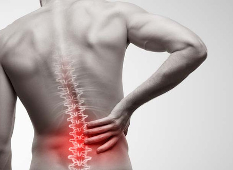 Efficacy of Chiropractic Treatment in Post Surgical continued low back pain and Radicular Pain.