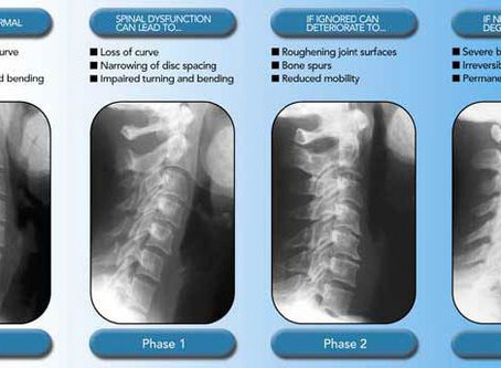 Efficacy of Chiropractic care on cervical (neck) herniated discs with Degenerative changes.